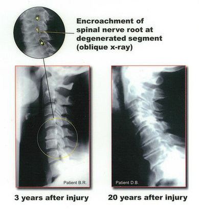 Billings Chiropractor | Billings chiropractic Spinal Injury Reference Images | MT |